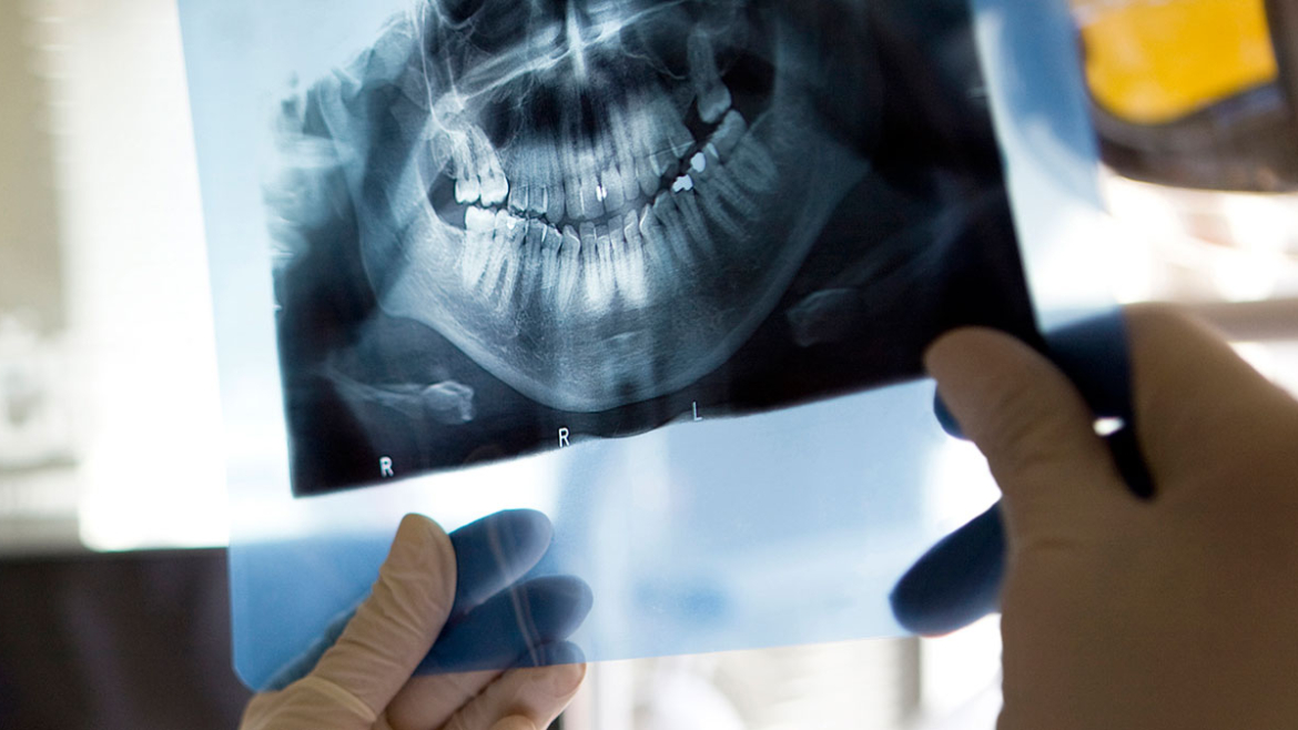 Root Canal in Yorkton