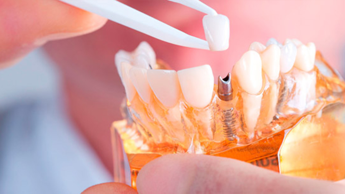 Dental Implants in Yorkton