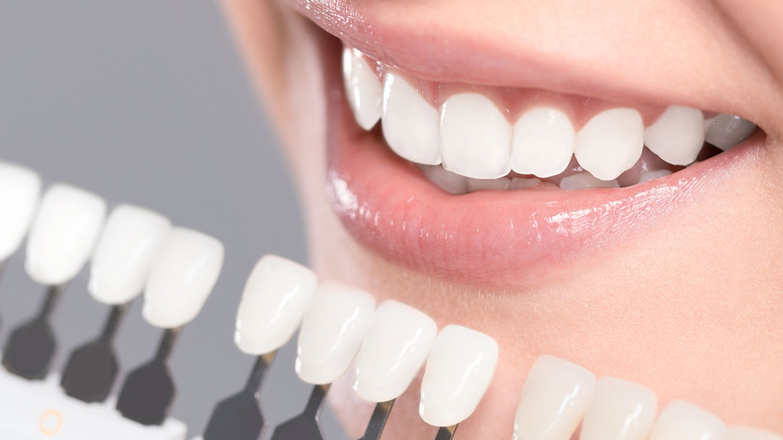 Teeth Whitening in Yorkton